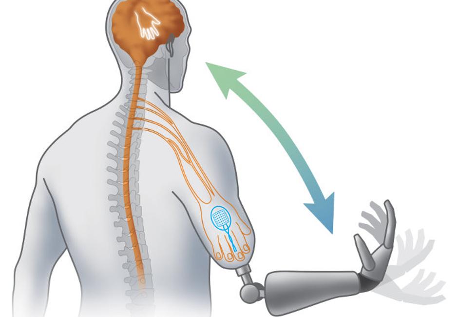 L'arto bionico in tre step di Natural Bionics.